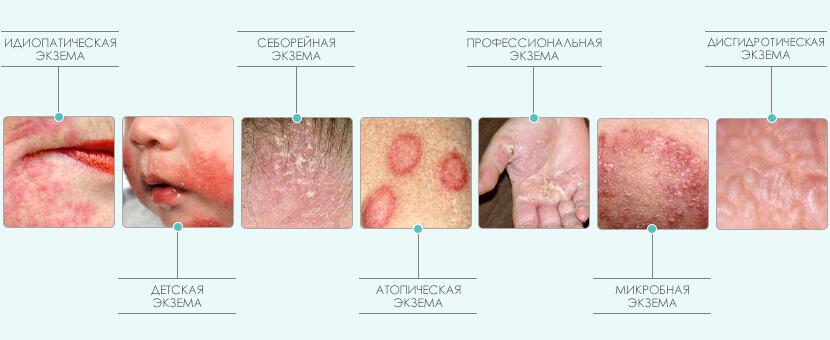 Лечение экземы в Киеве